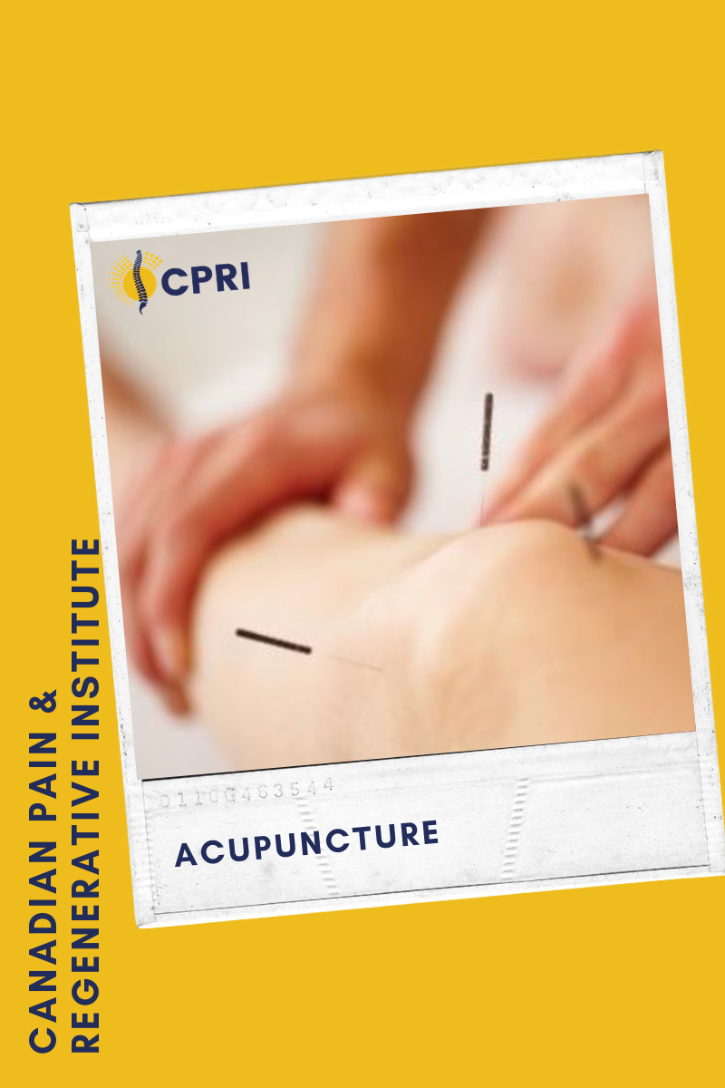 Acupuncture-Blog