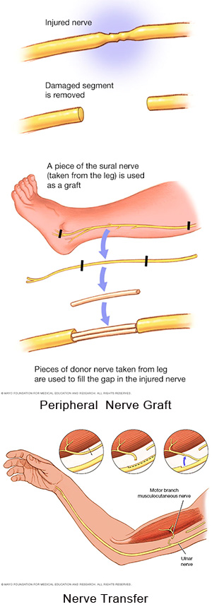 diagram of nerve graft as well as nerve transfer